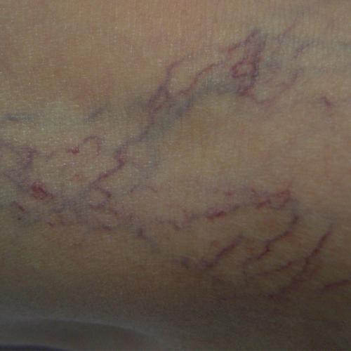 03 Vascular Treatment Before