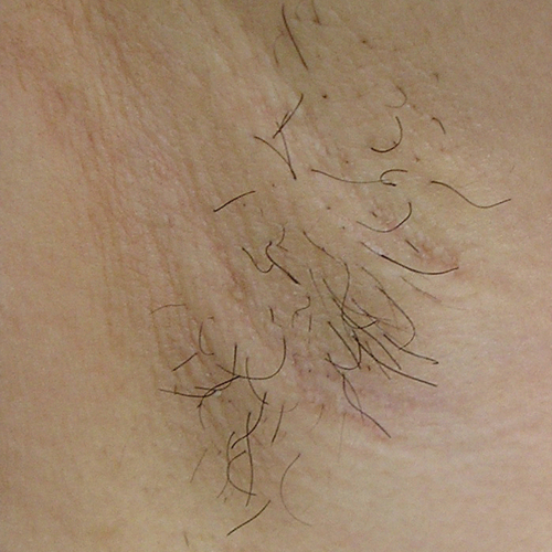 05 Hair Removal Before