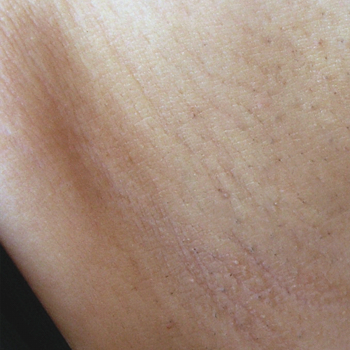 06 Hair Removal After