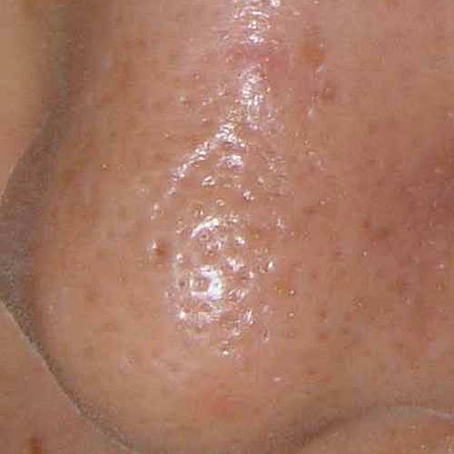07 Large Pores Before