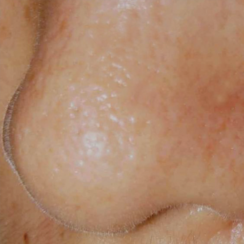 08 Large Pores After