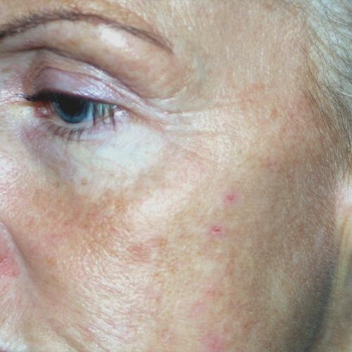 09 Skin Tightening Before