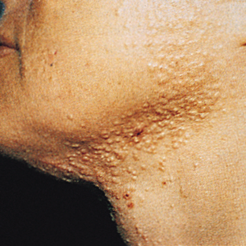 1 Acne Before