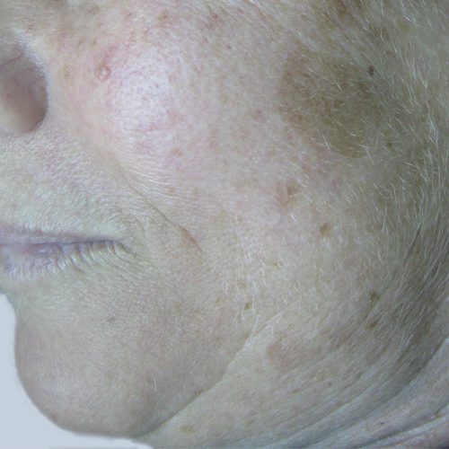 1 Pigmented Lesion Face Before