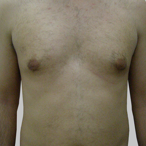 10 Hair Removal Torso After