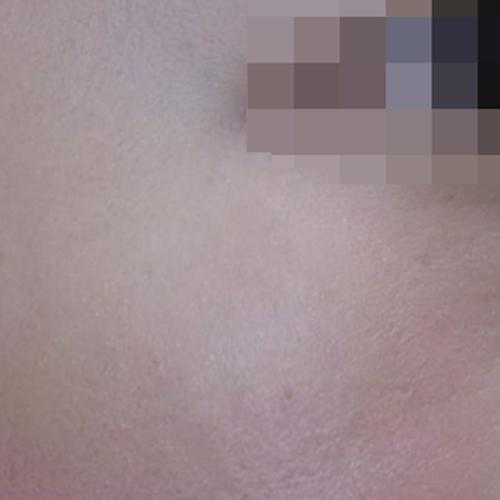 10 Lentigine Treatment After