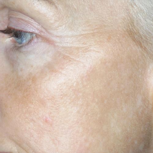 10 Skin Tightening After