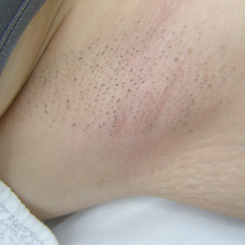 11 Hair Removal Armpit Before