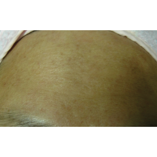 12 Wrinkles (10tx) After