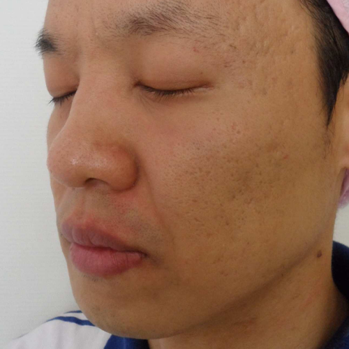 14 Post Acne Scars After
