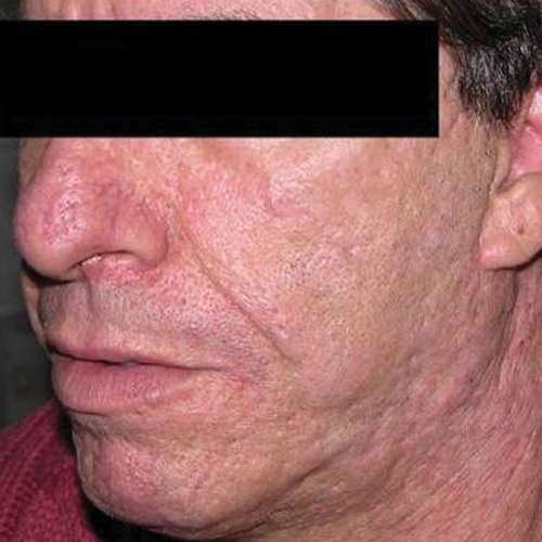2 Old Acne Scars After