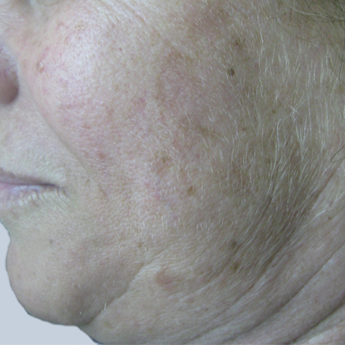 2 Pigmented Lesion Face After