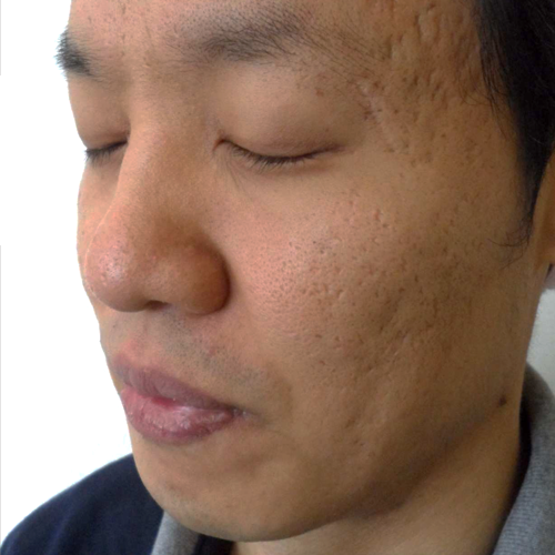 3 Acne Scars Before