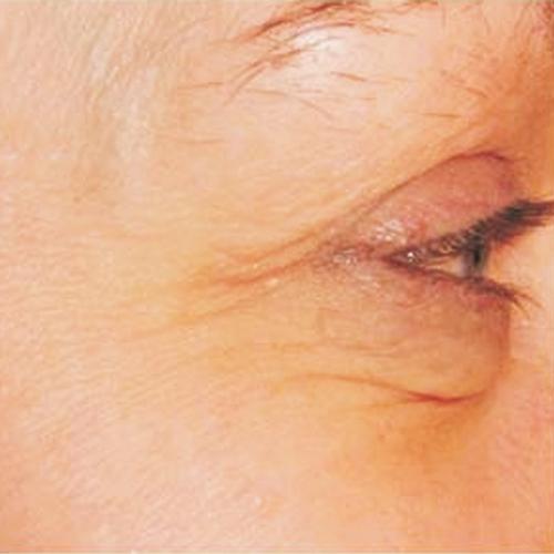 3 Eye Before
