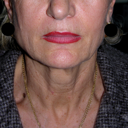 3 Face and Neck Laxity Before