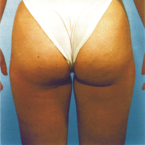 3 Glutes Before