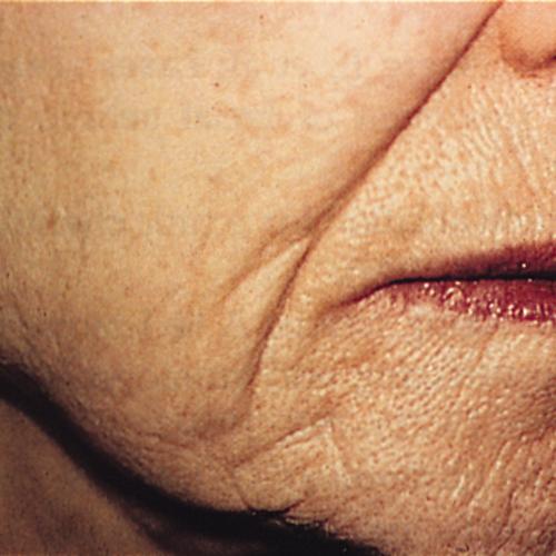 3 Wrinkles Before