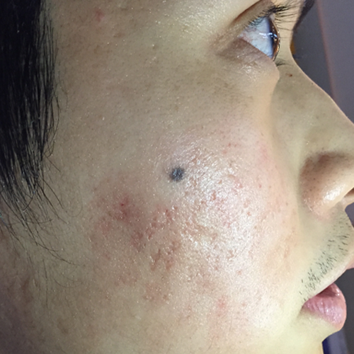 4 Acne Scars After