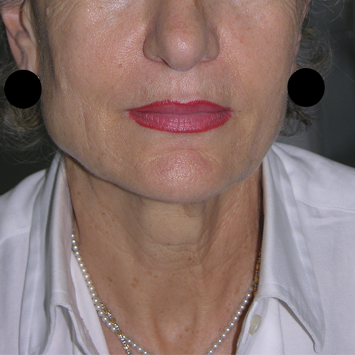 4 Face and Neck Laxity After