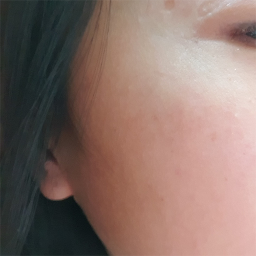 4 Freckles & Age Spots After