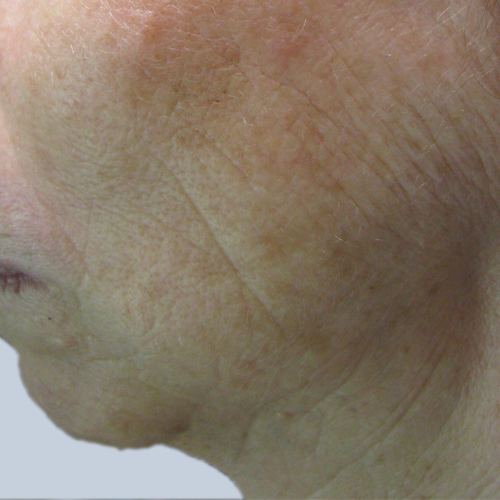 4 Pigmented Lesion Face After