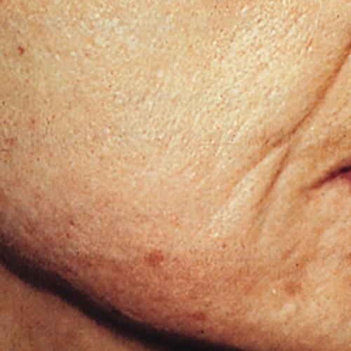 4 Wrinkles After