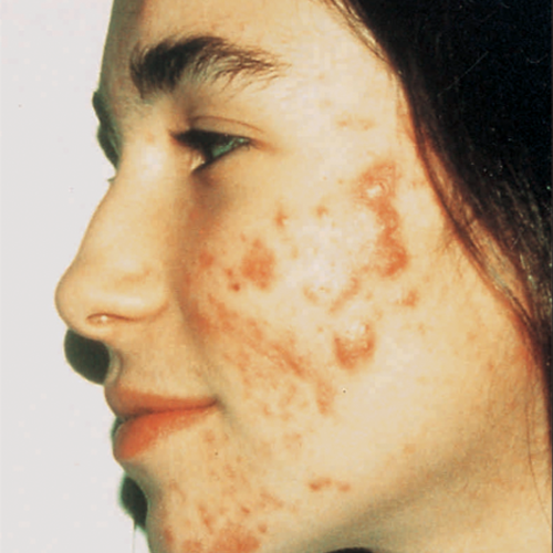 5 Acne Before