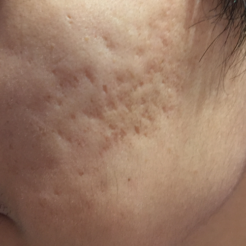5 Acne Scars Before
