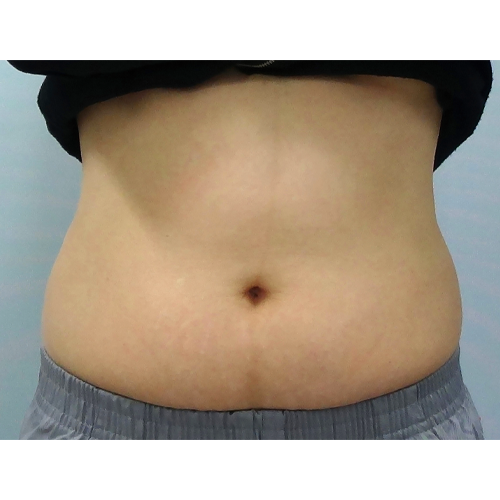 5 Belly Before