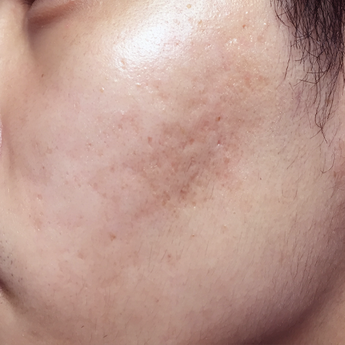 6 Acne Scars After
