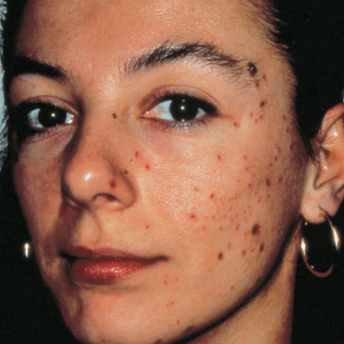 7 Acne Before