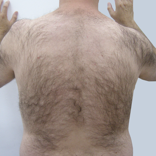 7 Hair Removal Back Before