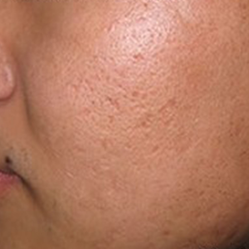 8 Large Pores After
