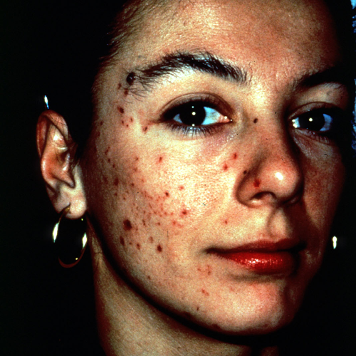 9 Acne Before