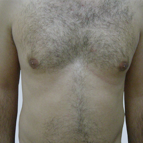 9 Hair Removal Torso Before