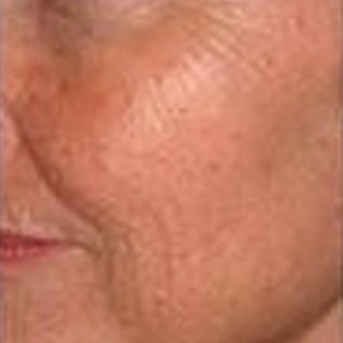 9 Skin Rejuvenation Before