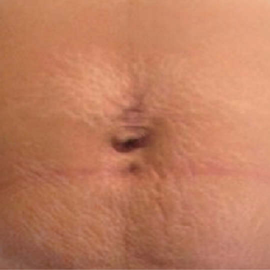 Cellulite Reduction Before