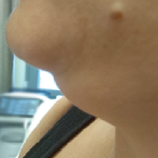Double Chin Before