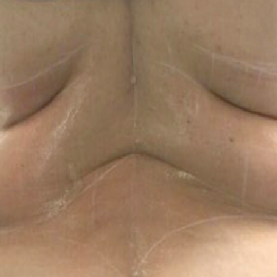 Fat Reduction Before