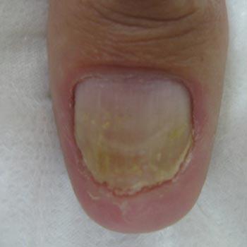 Nail Fungus After