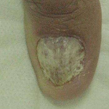 Nail Fungus Before