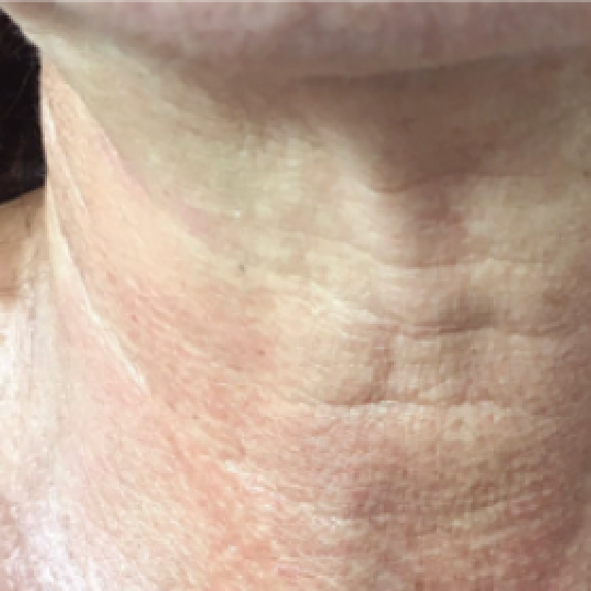 Neck Tightening Immediately After