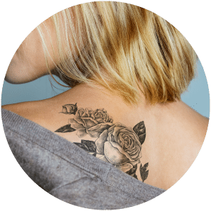 Tattoo Removal & Cosmetic Tattoos